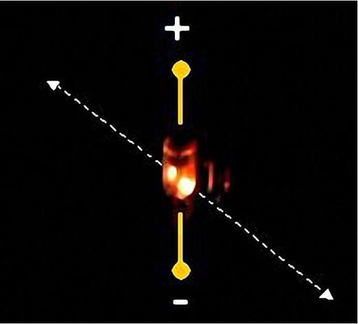 Laser polimerowy_m